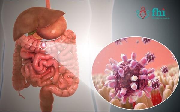 nhiễm khuẩn đường ruột gây ra phân sống ở trẻ sơ sinh